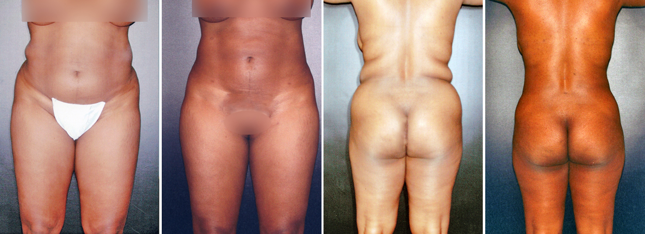 Liposuction Surgery Before And After