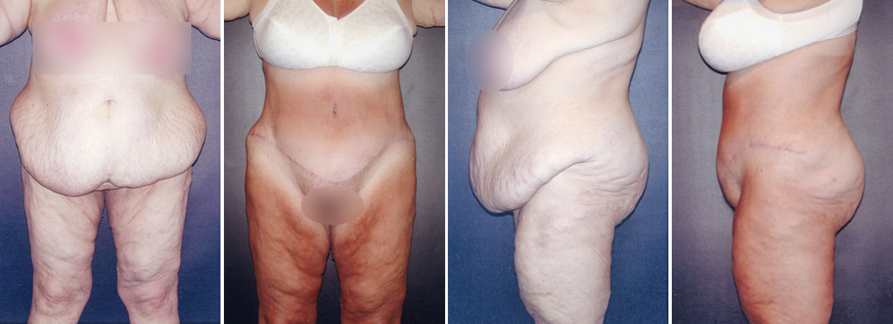 Abdominoplasty Surgery Before And After