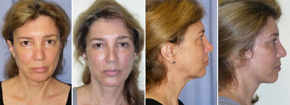 Before And After Facelift Surgery