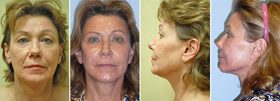 Before And After Facelift With Dr. Brandow