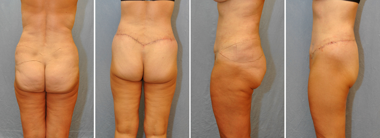 Lower Body Lift Before And After