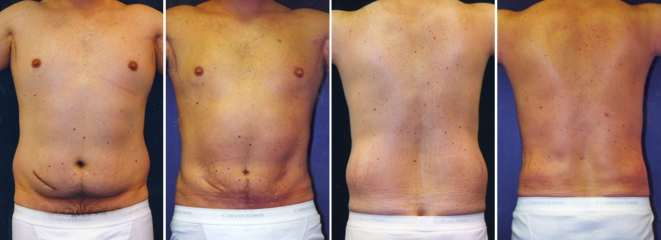 Male Lipo Before And After