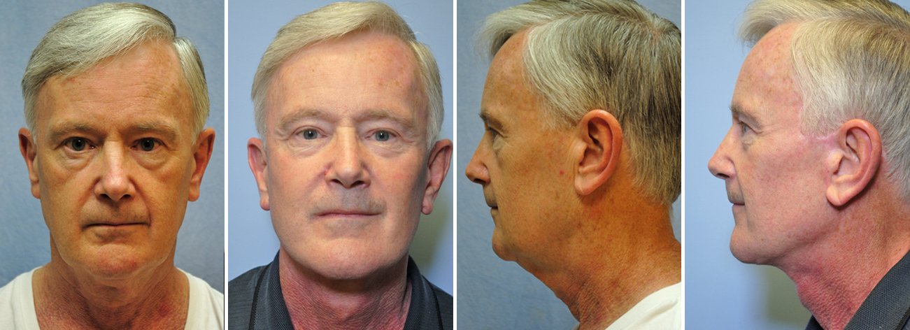 Before And After Male Facelift